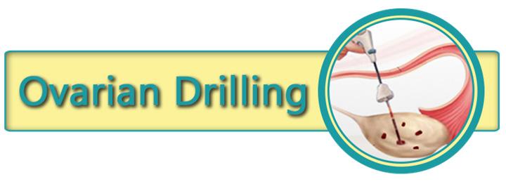 ovarian drilling