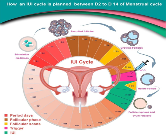Mature Follicle Size For Iui